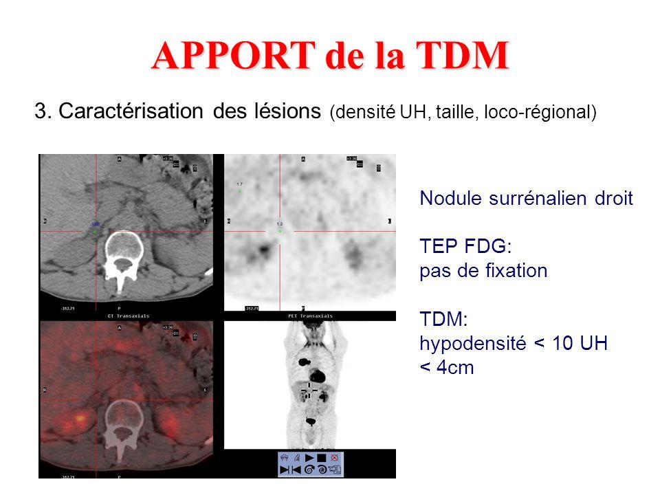 APPORT de la TDM 3. Caractérisation des lésions (densité UH, taille, loco-régional) Nodule surrénalien droit.