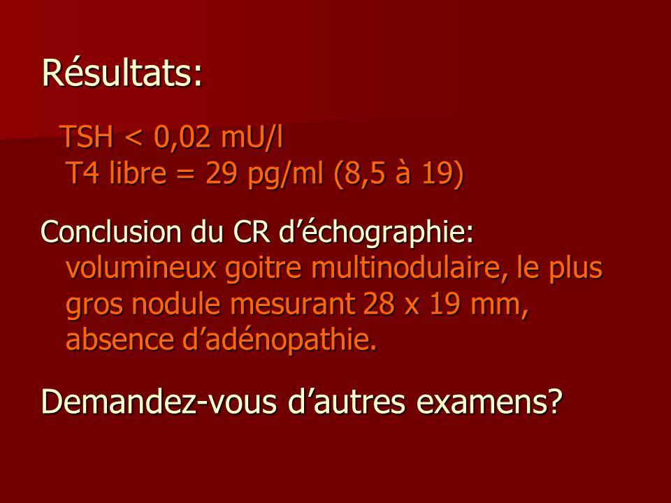 Résultats: Demandez-vous d'autres examens
