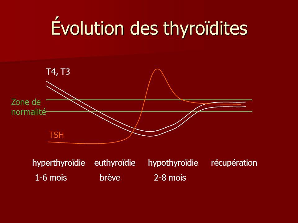 Évolution des thyroïdites