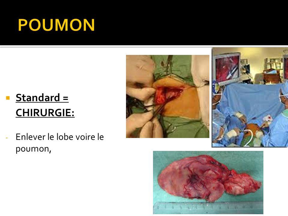 POUMON Standard = CHIRURGIE: Enlever le lobe voire le poumon,