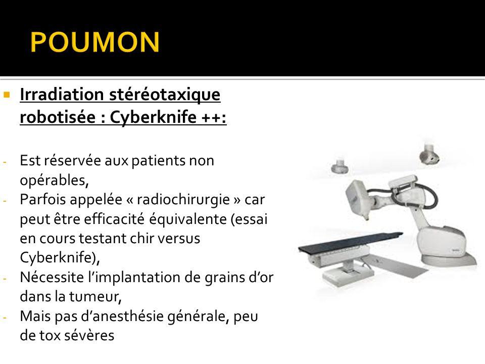 POUMON Irradiation stéréotaxique robotisée : Cyberknife ++: