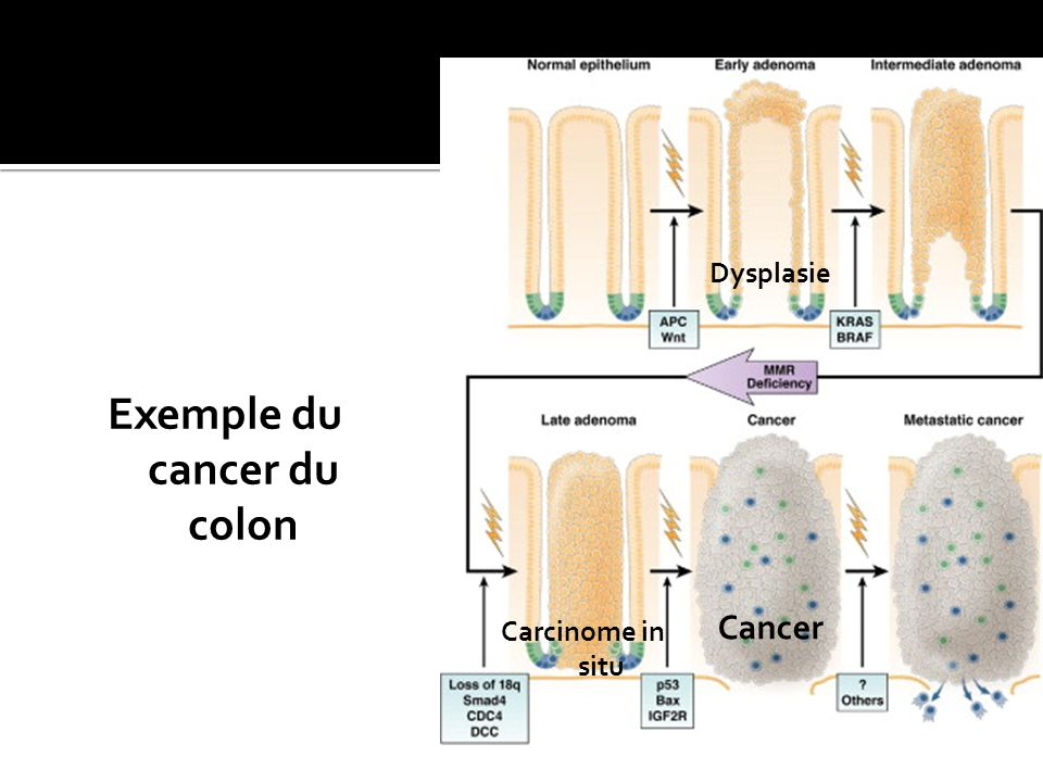 Exemple du cancer du colon