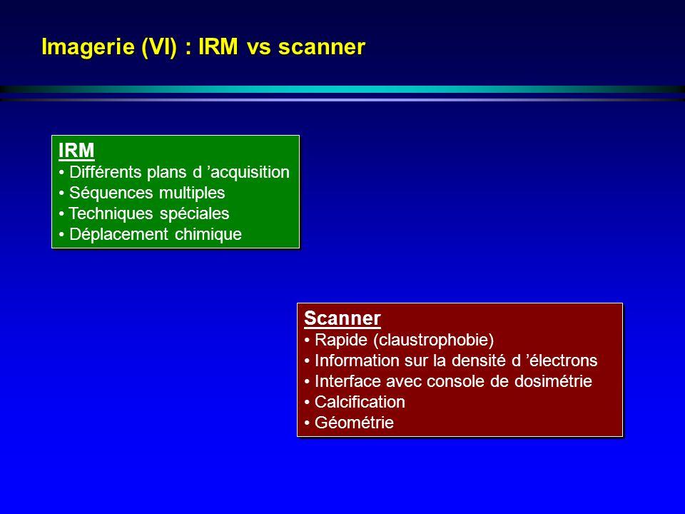Imagerie (VI) : IRM vs scanner