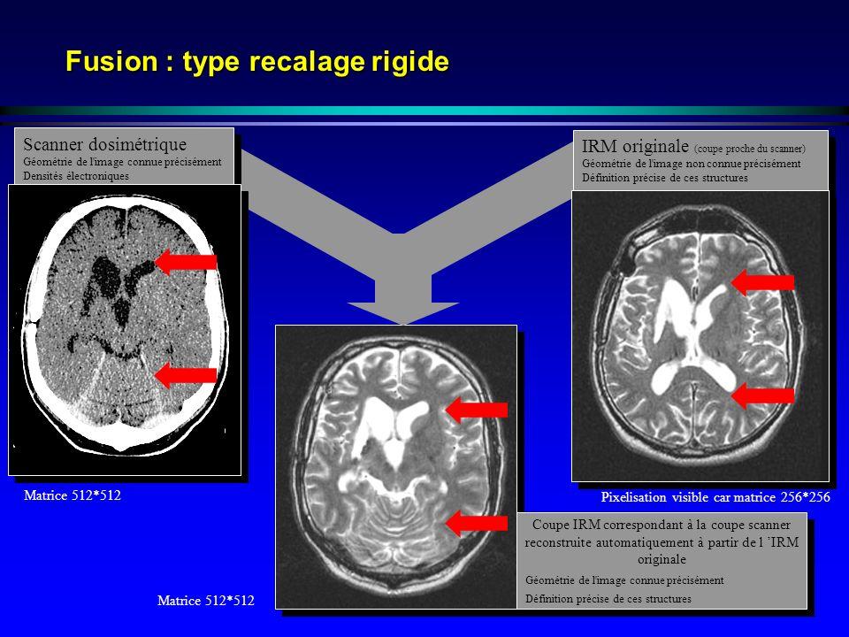 Fusion : type recalage rigide