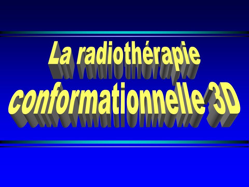 La radiothérapie conformationnelle 3D