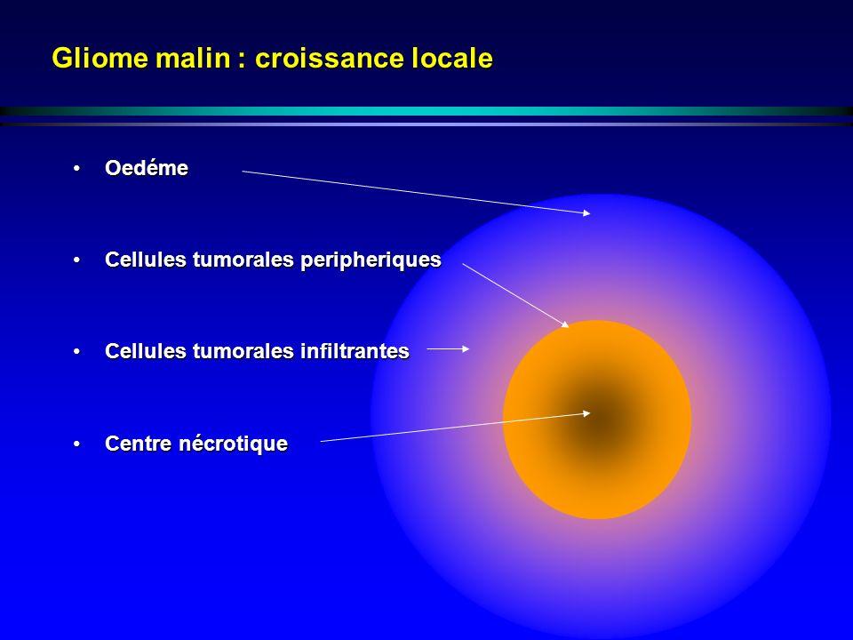 Gliome malin : croissance locale