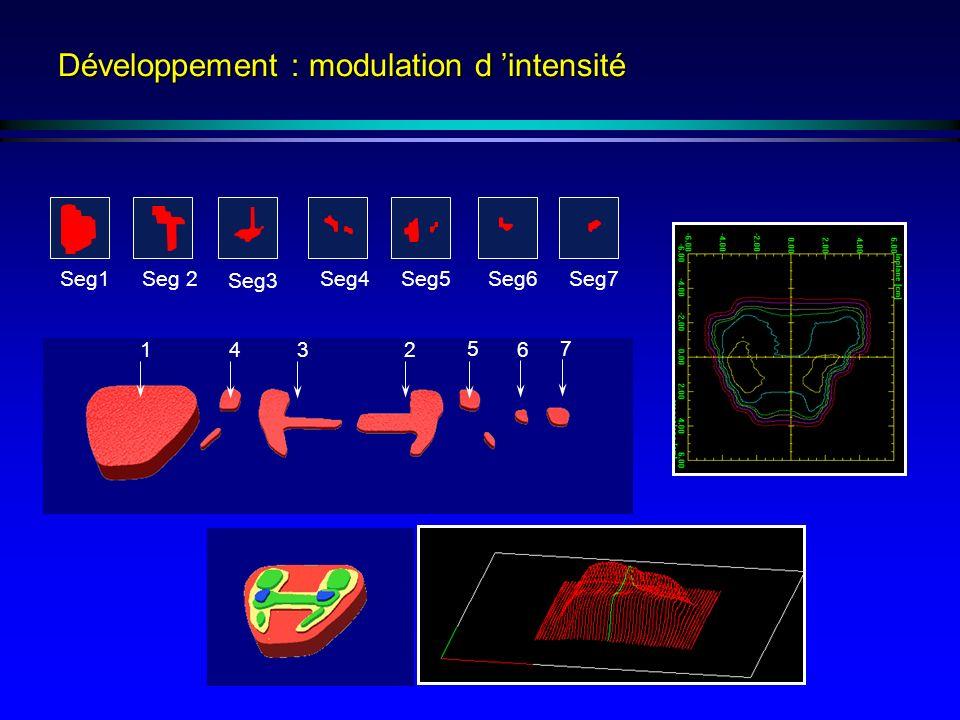 Développement : modulation d 'intensité