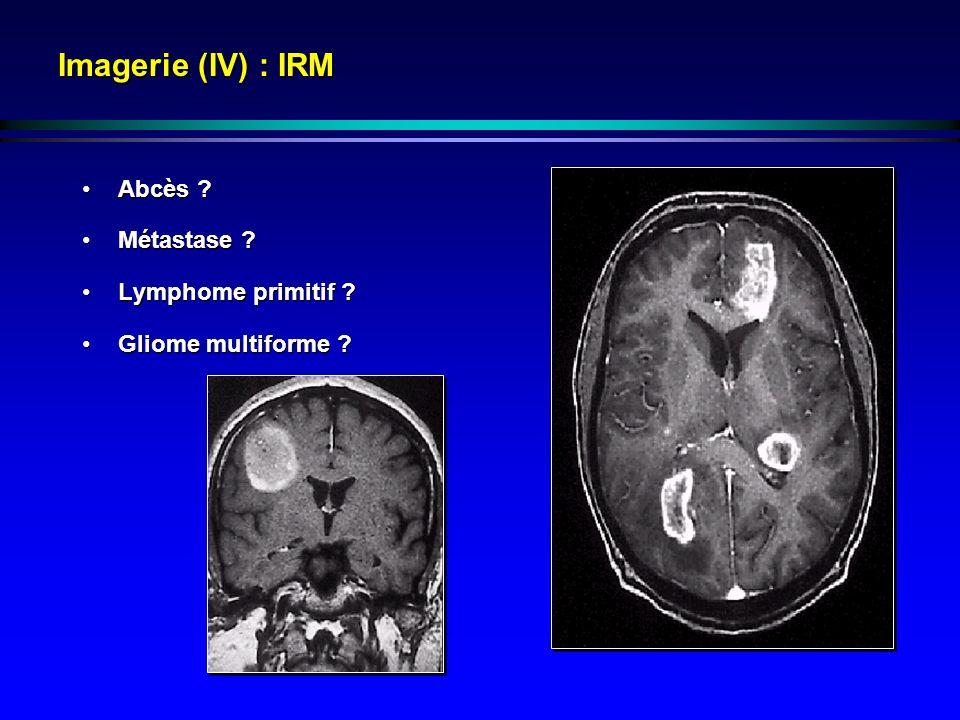 Imagerie (IV) : IRM Abcès Métastase Lymphome primitif