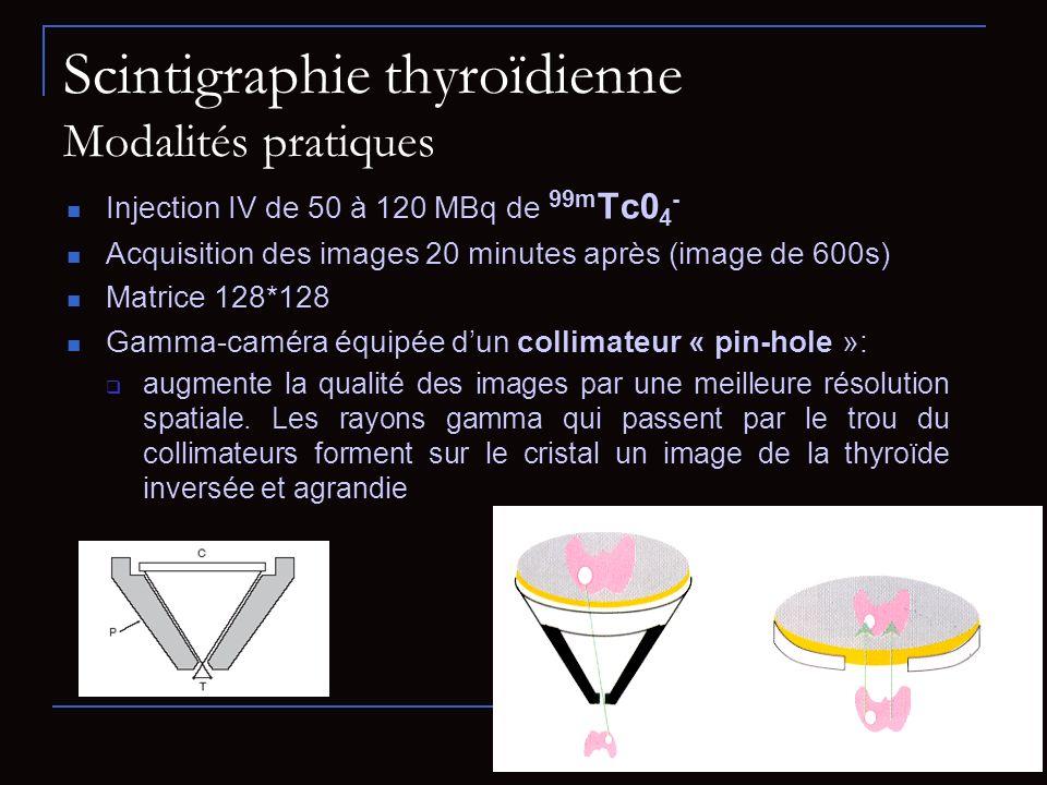 Scintigraphie thyroïdienne Modalités pratiques