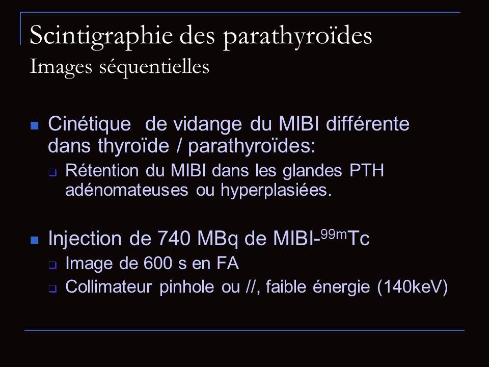 Scintigraphie des parathyroïdes Images séquentielles