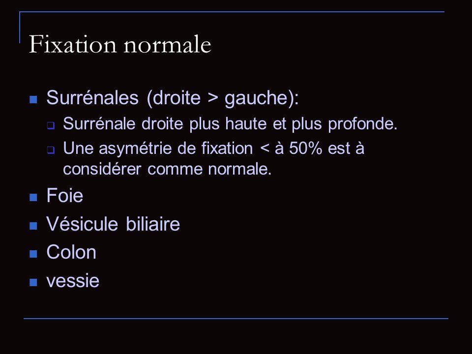 Fixation normale Surrénales (droite > gauche): Foie