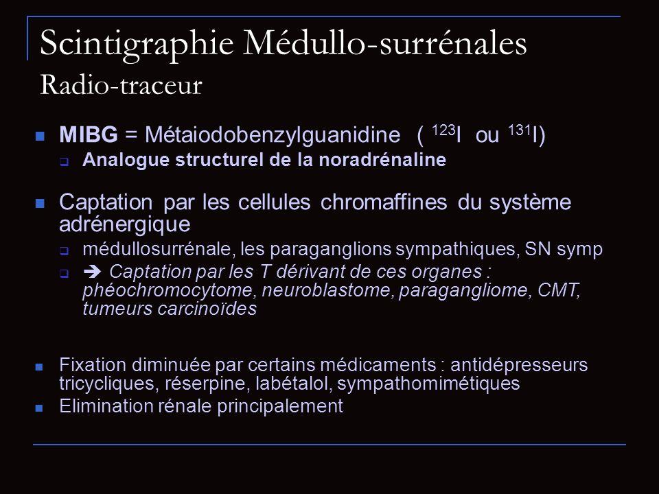 Scintigraphie Médullo-surrénales Radio-traceur