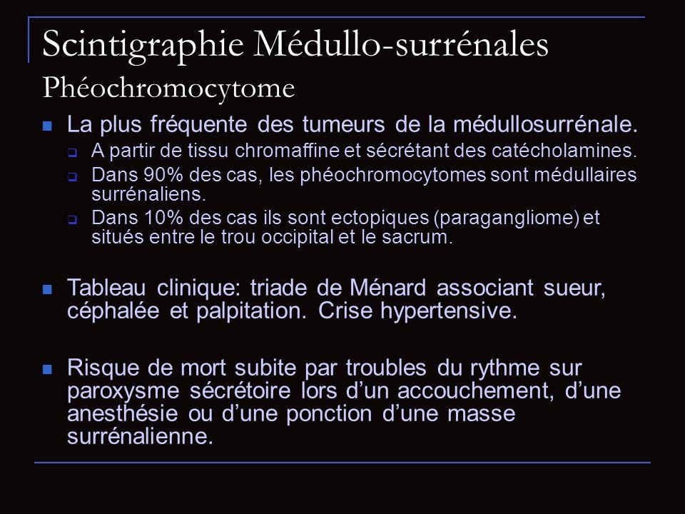 Scintigraphie Médullo-surrénales Phéochromocytome