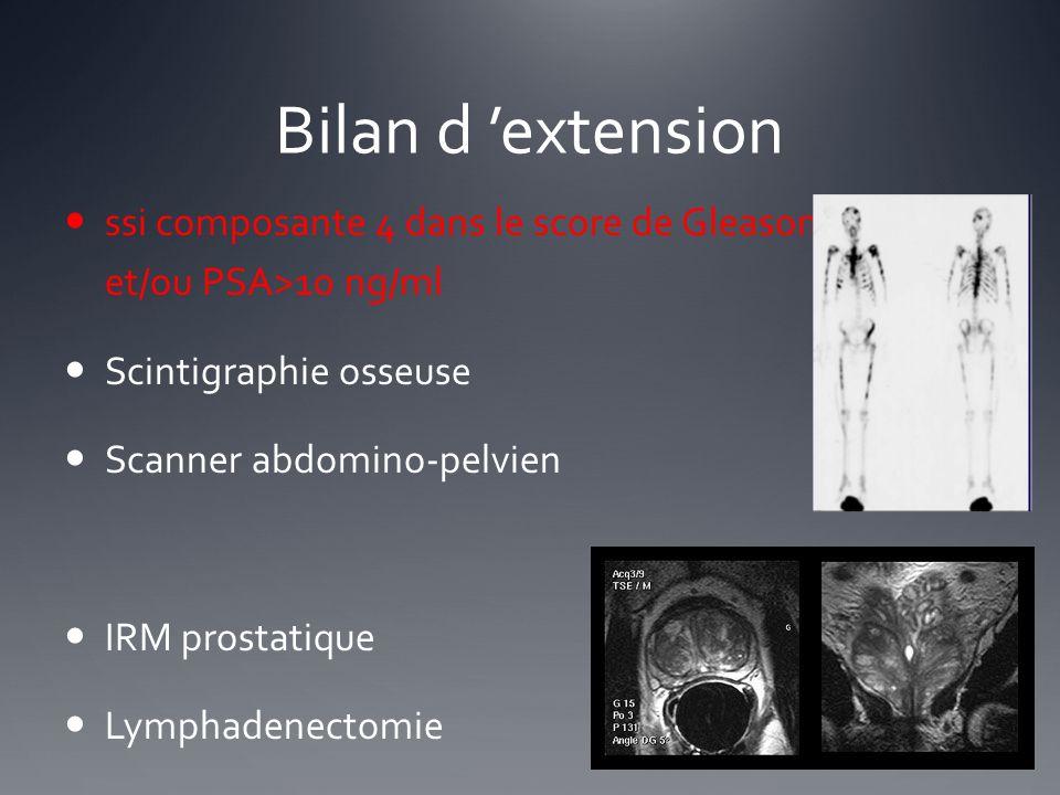 Bilan d 'extension ssi composante 4 dans le score de Gleason et/ou PSA>10 ng/ml. Scintigraphie osseuse.
