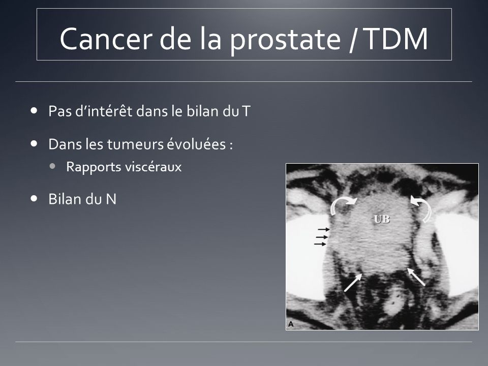 Cancer de la prostate / TDM