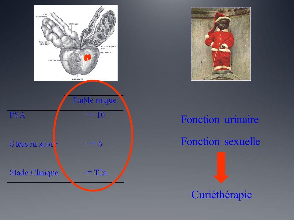 Fonction urinaire Fonction sexuelle Curiéthérapie