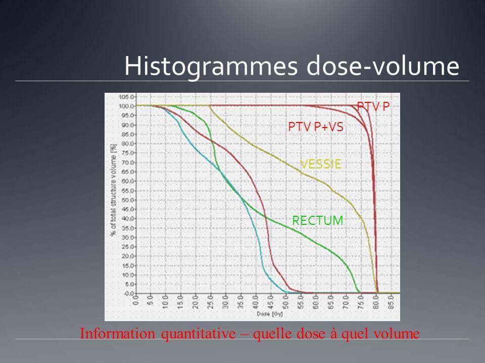 Histogrammes dose-volume