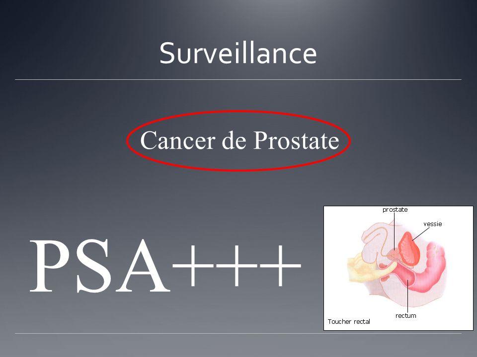 Surveillance Cancer de Prostate PSA+++