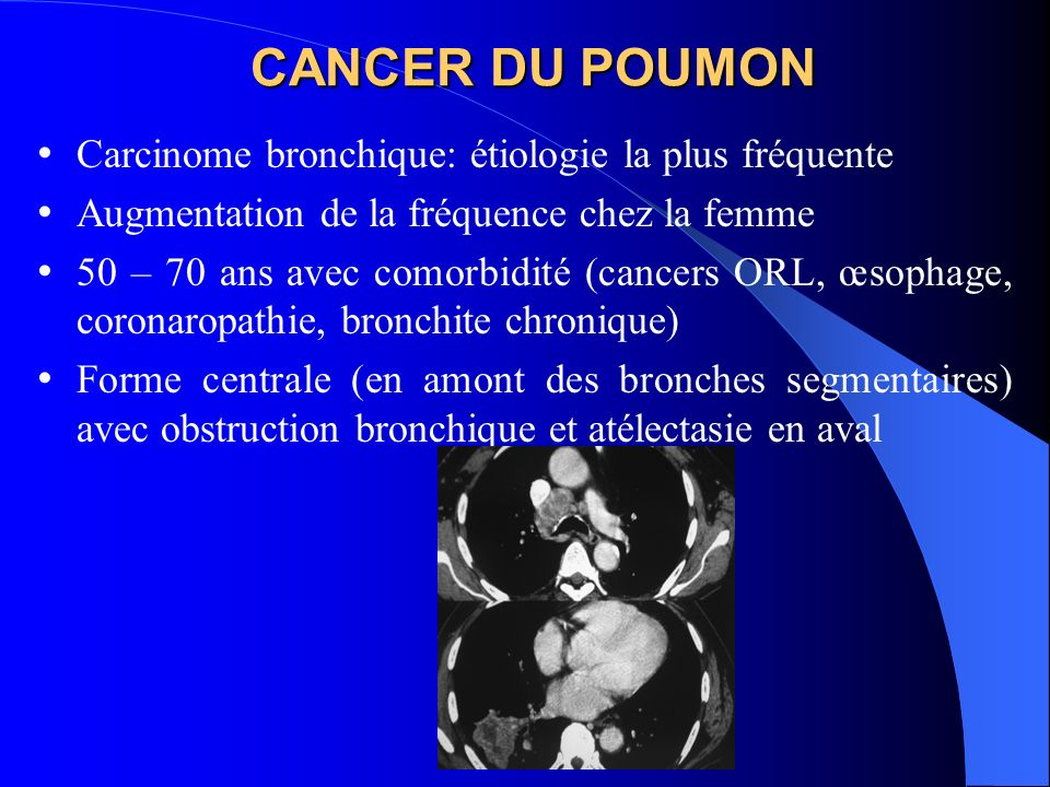 CANCER DU POUMON Carcinome bronchique: étiologie la plus fréquente