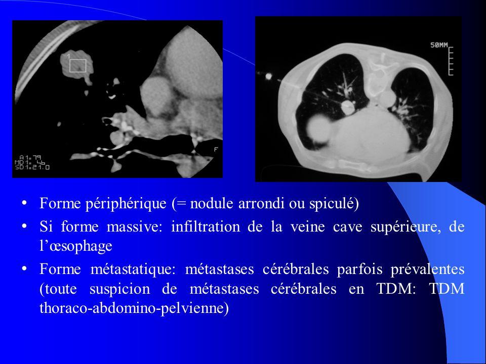 Forme périphérique (= nodule arrondi ou spiculé)