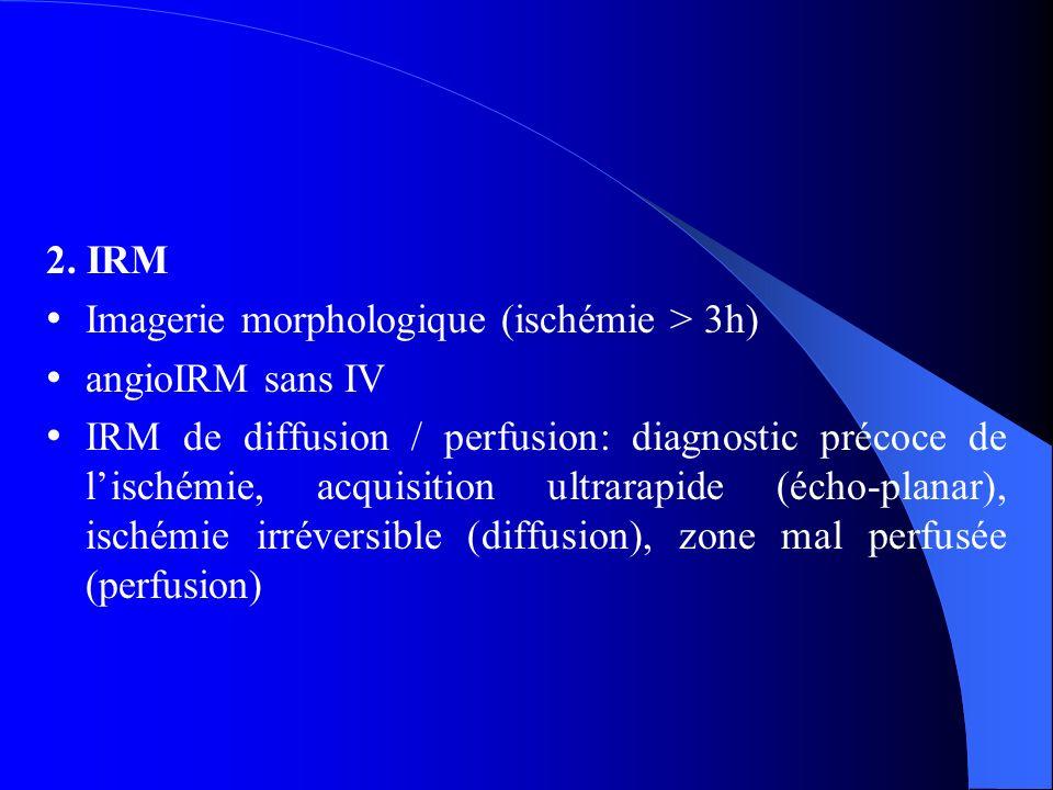 2. IRM Imagerie morphologique (ischémie > 3h) angioIRM sans IV.