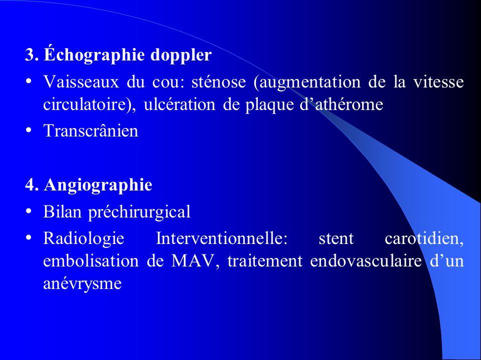3. Échographie doppler Vaisseaux du cou: sténose (augmentation de la vitesse circulatoire), ulcération de plaque d'athérome.