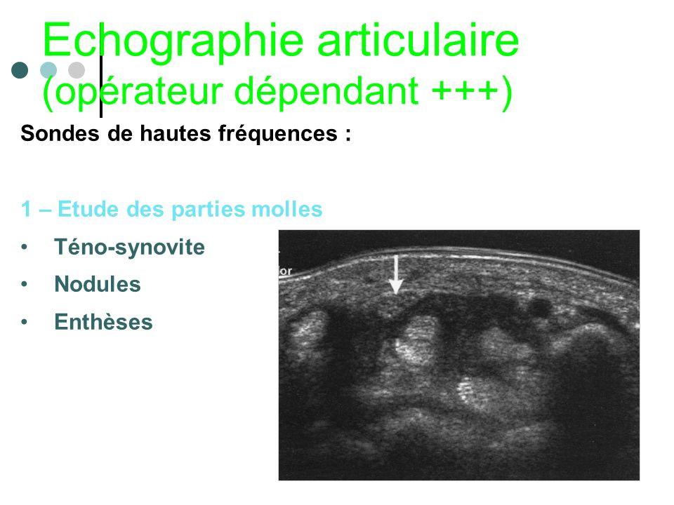 Echographie articulaire (opérateur dépendant +++)