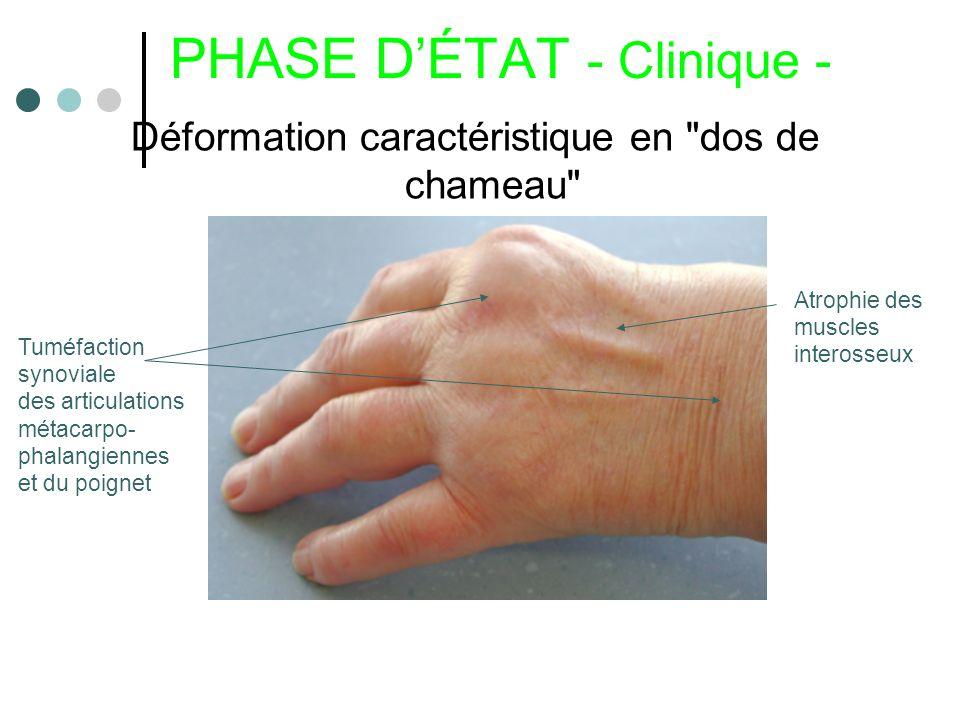 PHASE D'ÉTAT - Clinique -