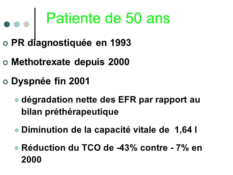Patiente de 50 ans PR diagnostiquée en 1993 Methotrexate depuis 2000