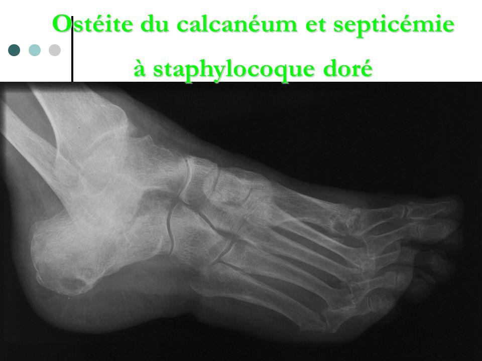 Ostéite du calcanéum et septicémie