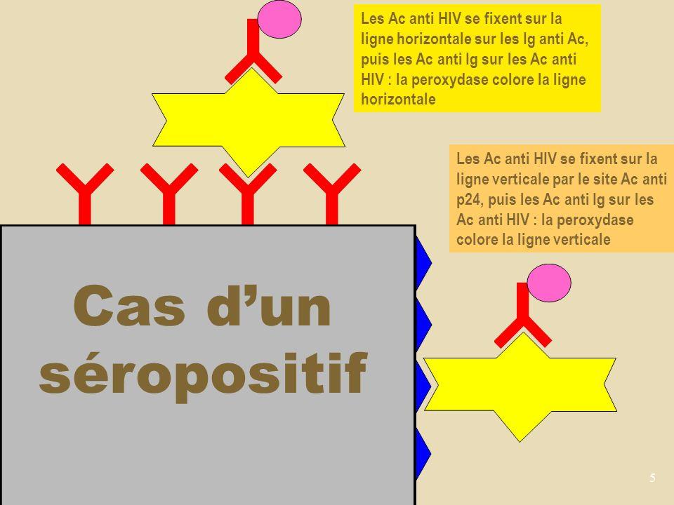 Les Ac anti HIV se fixent sur la ligne horizontale sur les Ig anti Ac, puis les Ac anti Ig sur les Ac anti HIV : la peroxydase colore la ligne horizontale