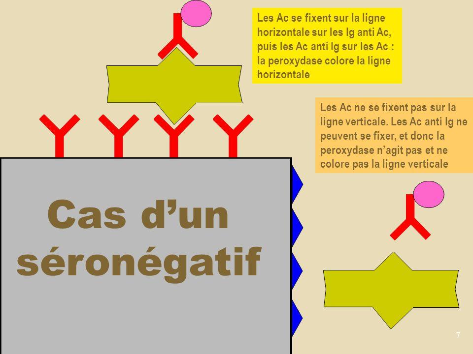 Les Ac se fixent sur la ligne horizontale sur les Ig anti Ac, puis les Ac anti Ig sur les Ac : la peroxydase colore la ligne horizontale