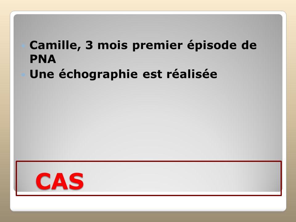 CAS Camille, 3 mois premier épisode de PNA