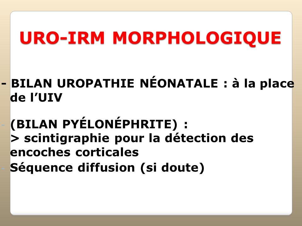 URO-IRM MORPHOLOGIQUE