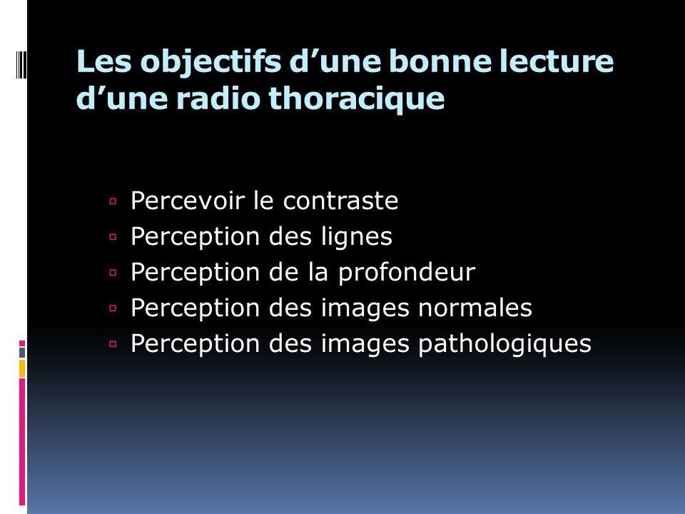 Les objectifs d'une bonne lecture d'une radio thoracique