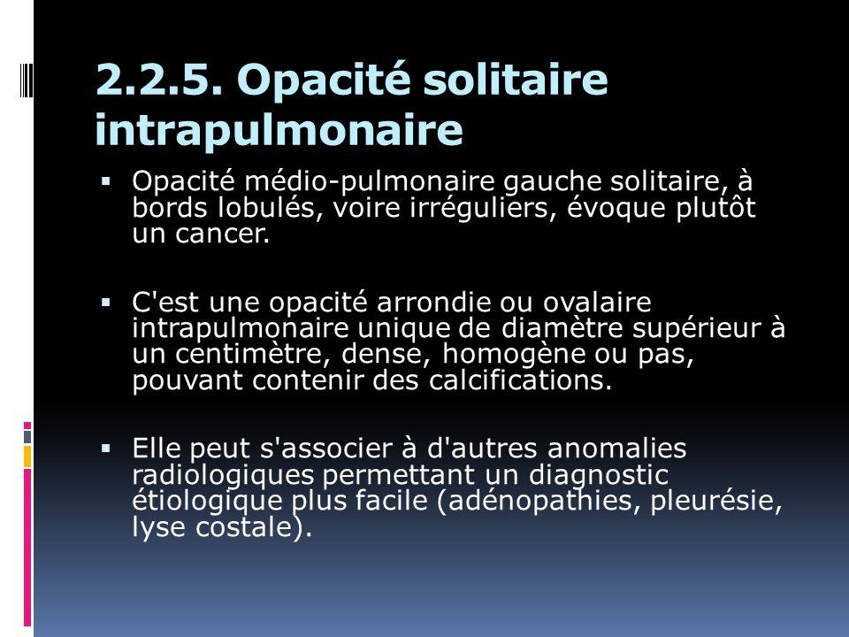 2.2.5. Opacité solitaire intrapulmonaire