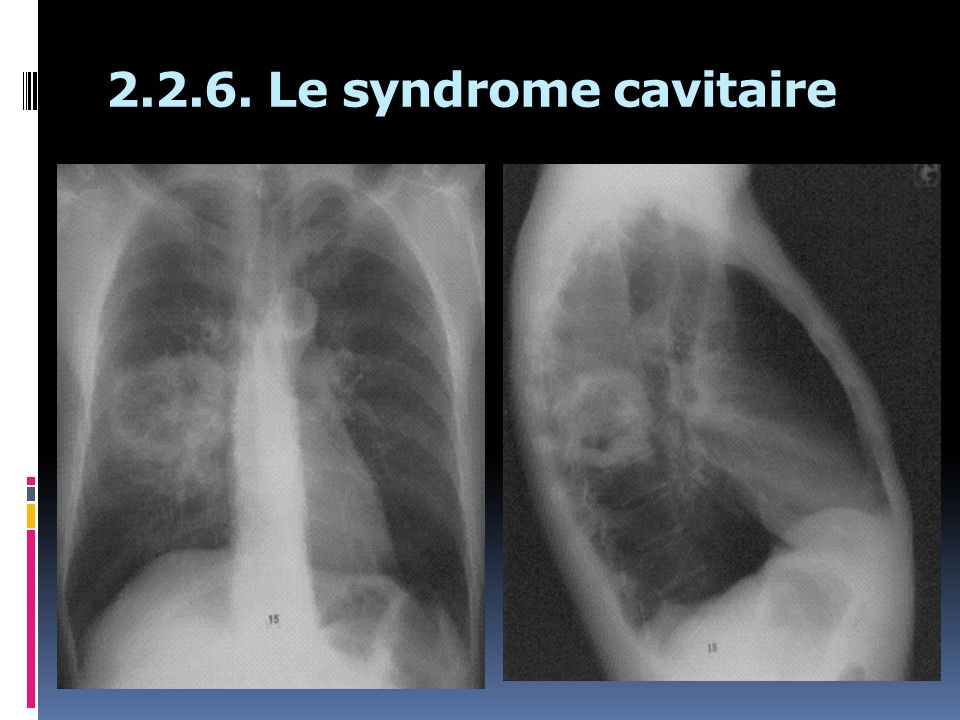 2.2.6. Le syndrome cavitaire