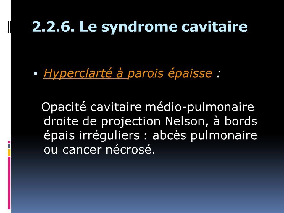 2.2.6. Le syndrome cavitaire Hyperclarté à parois épaisse :