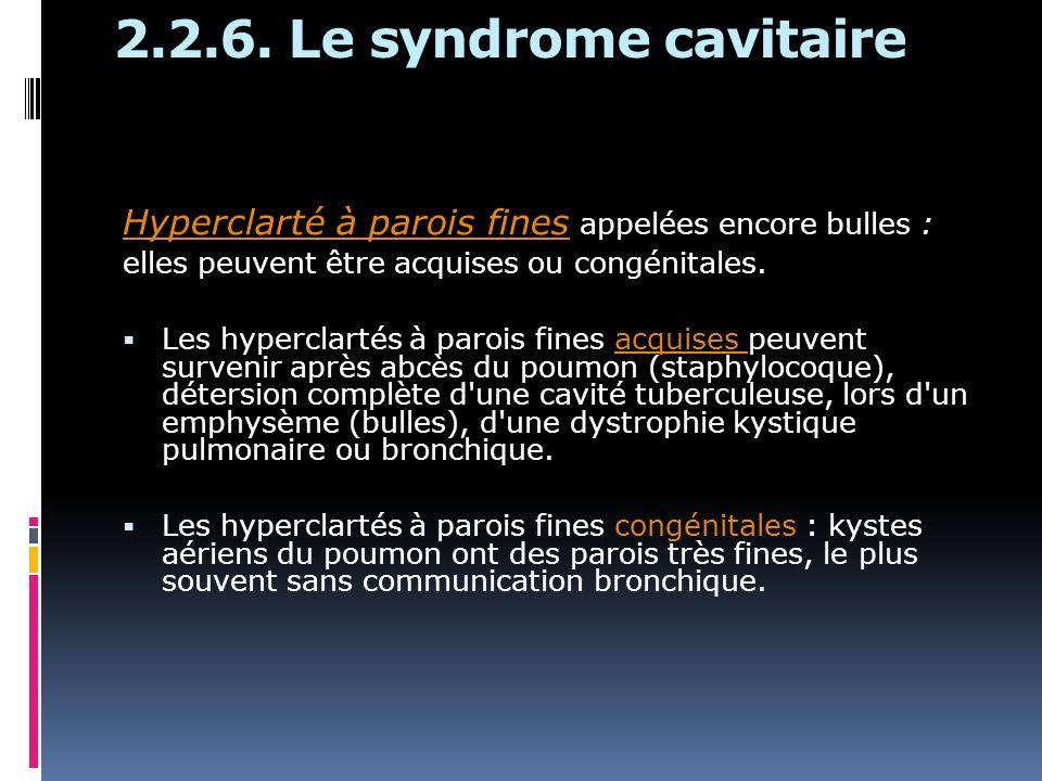2.2.6. Le syndrome cavitaire Hyperclarté à parois fines appelées encore bulles : elles peuvent être acquises ou congénitales.