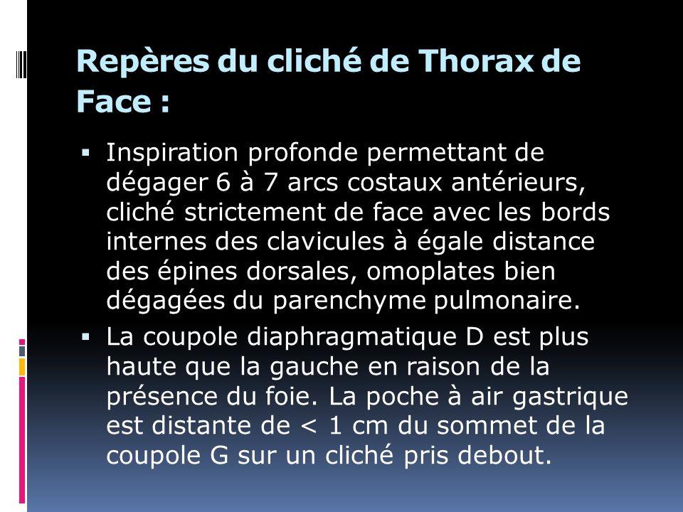Repères du cliché de Thorax de Face :