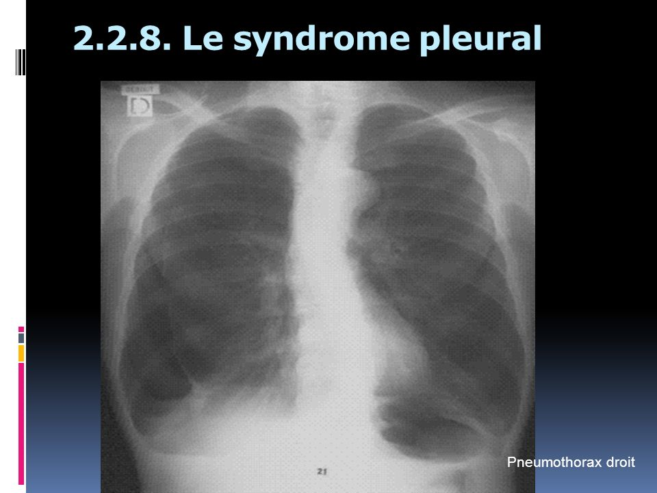 2.2.8. Le syndrome pleural Pneumothorax droit