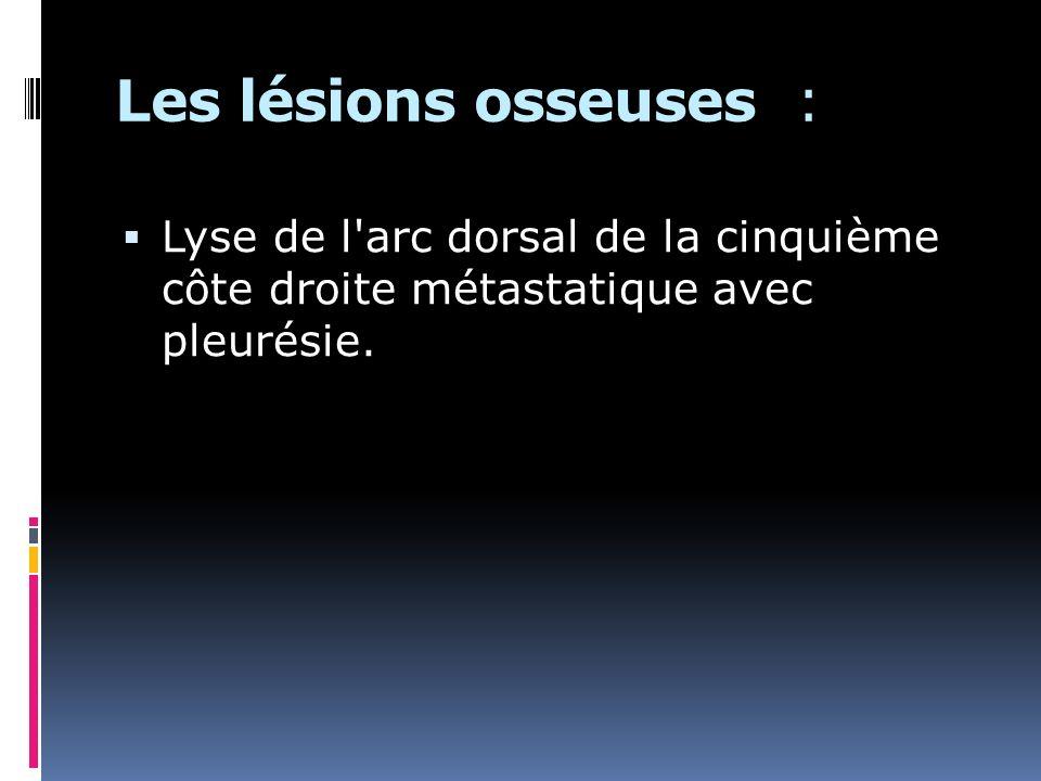 Les lésions osseuses : Lyse de l arc dorsal de la cinquième côte droite métastatique avec pleurésie.