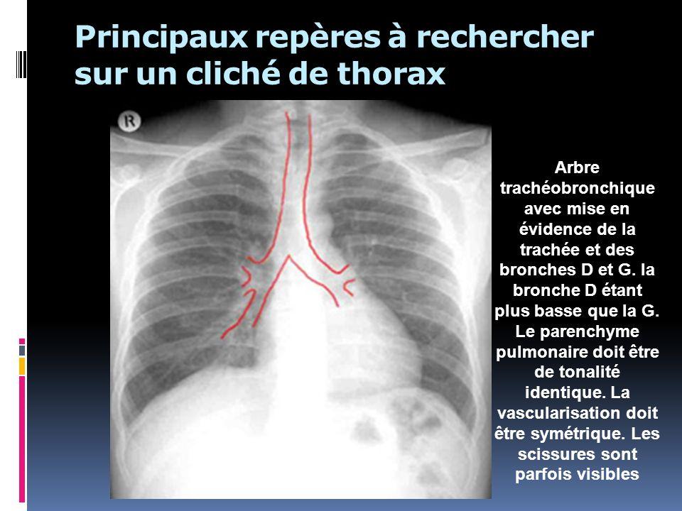 Principaux repères à rechercher sur un cliché de thorax