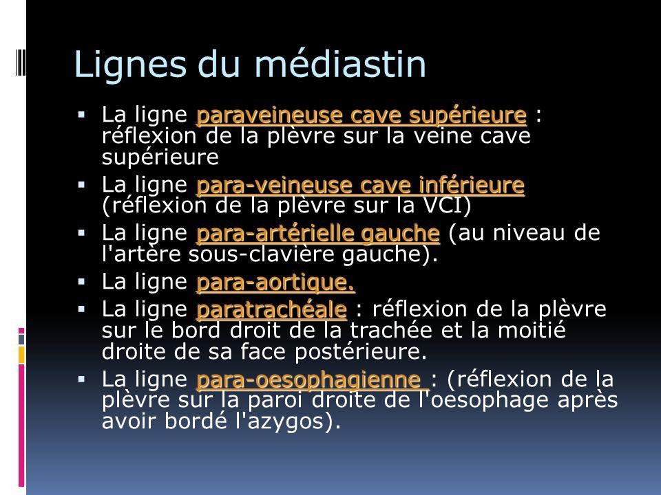 Lignes du médiastin La ligne paraveineuse cave supérieure : réflexion de la plèvre sur la veine cave supérieure.