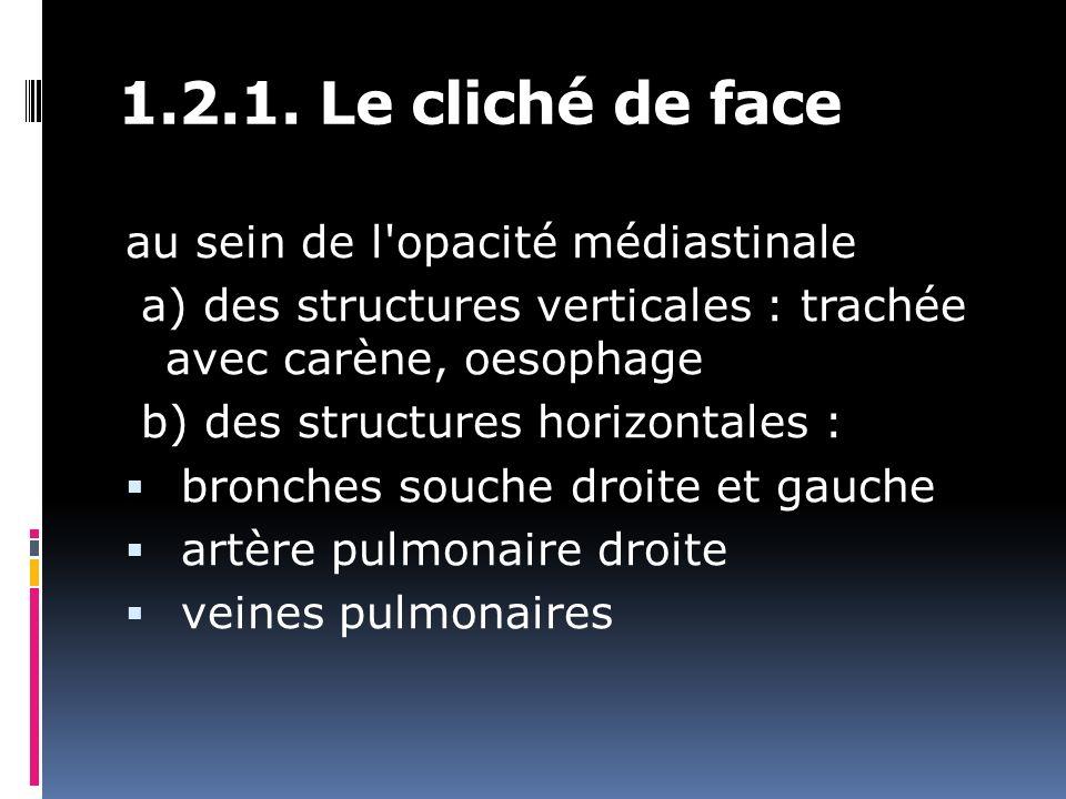 1.2.1. Le cliché de face au sein de l opacité médiastinale