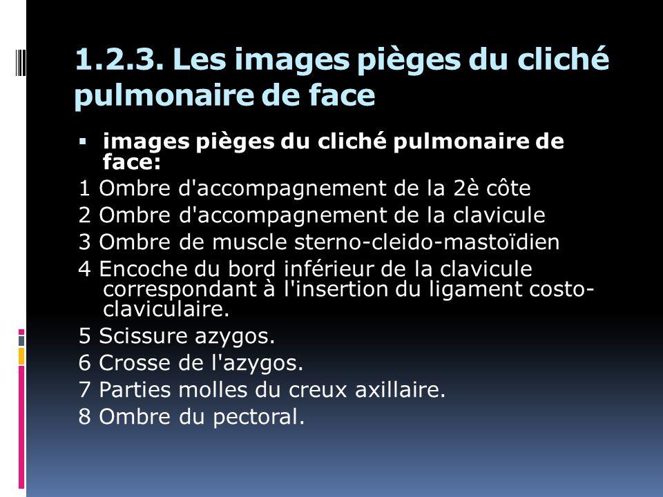 1.2.3. Les images pièges du cliché pulmonaire de face