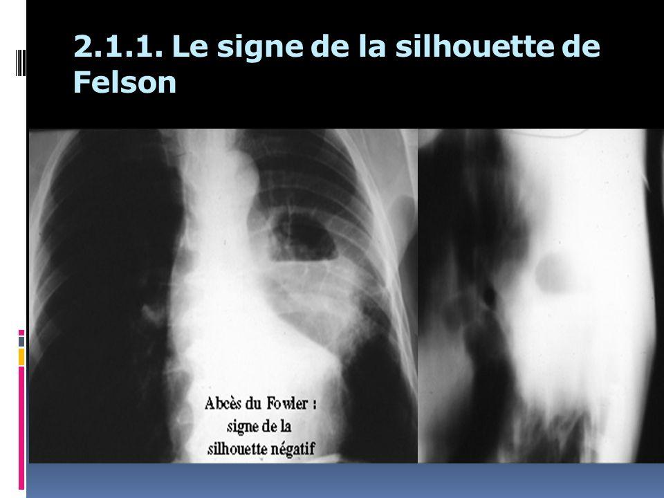 2.1.1. Le signe de la silhouette de Felson