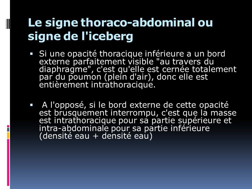 Le signe thoraco-abdominal ou signe de l iceberg