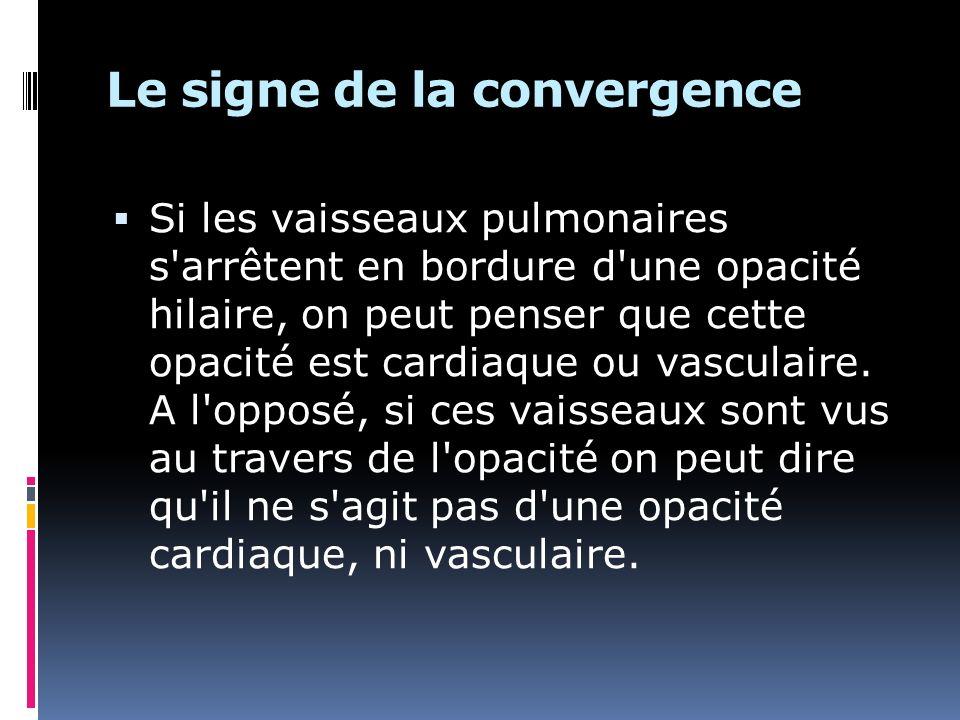 Le signe de la convergence
