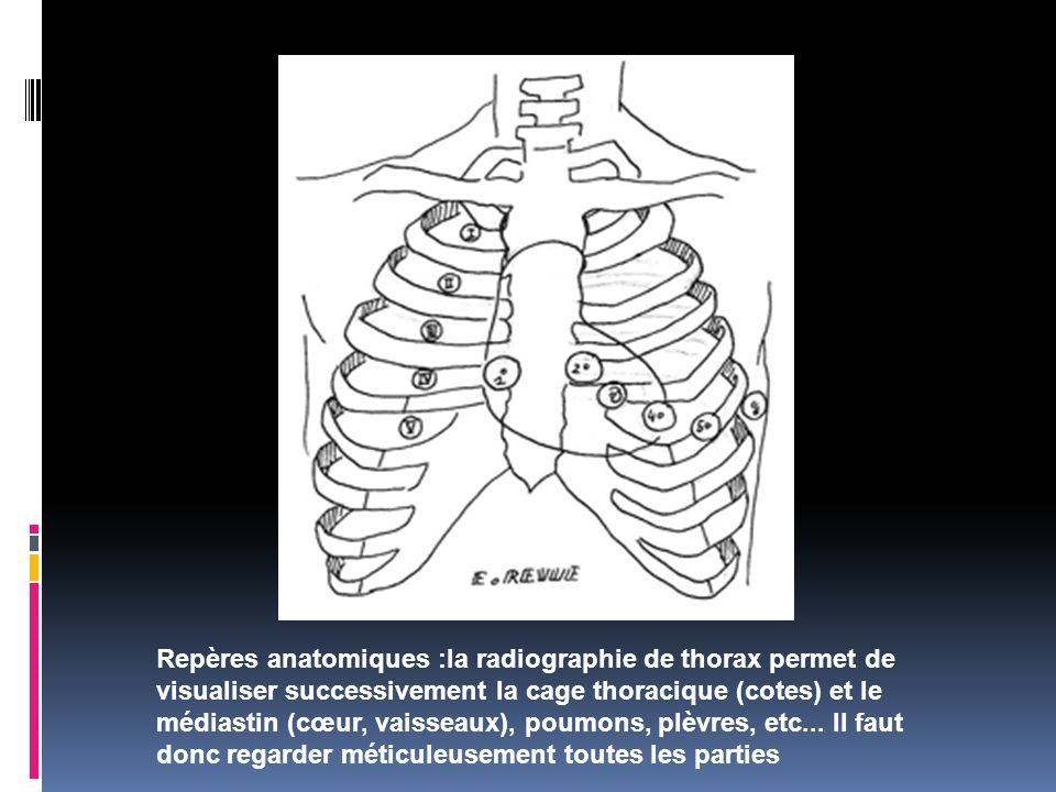 Repères anatomiques :la radiographie de thorax permet de visualiser successivement la cage thoracique (cotes) et le médiastin (cœur, vaisseaux), poumons, plèvres, etc...